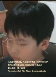 Terapi akupunktur untuk Tinnitus dan Sinusiris oleh Oei Gin Djing, Acp