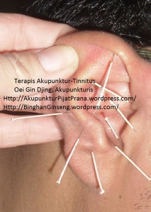 Akupunktur tinnitus oleh Oei Gin Djing, Akupunkturis